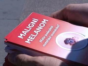 Informační leták o melanomu
