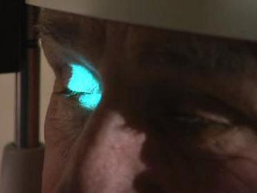 Kontrola očí