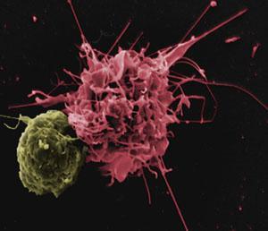 Dendritická buňka (vpravo) napomáhající T lymfocytu
