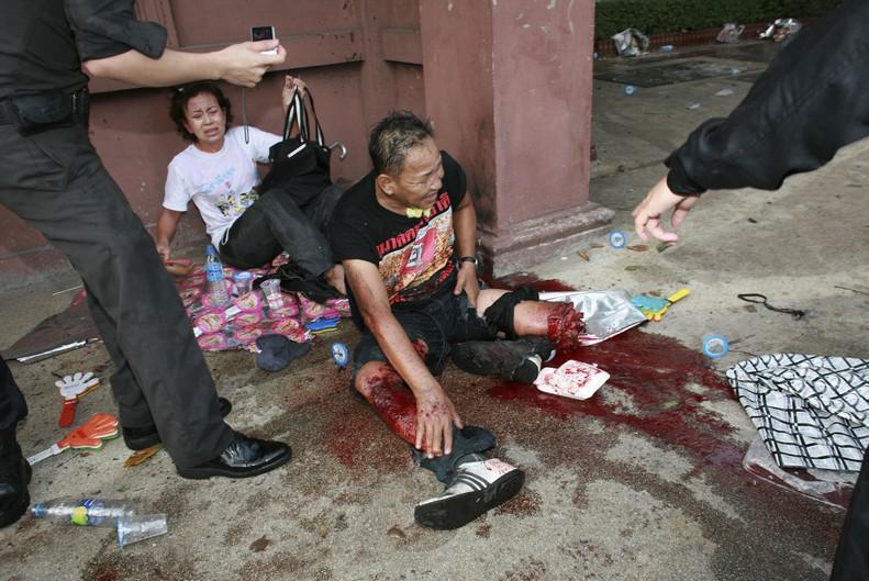 Zraněný thajský demonstrant