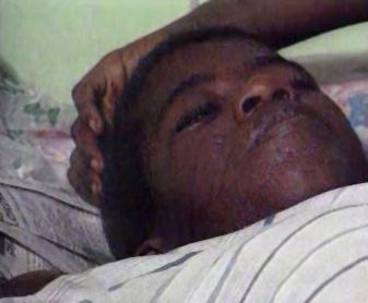 Pacient postižený malárií
