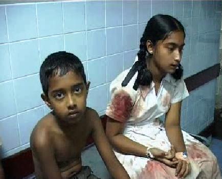Přeplněné nemocnice po výbuchu autobusu na Srí Lance