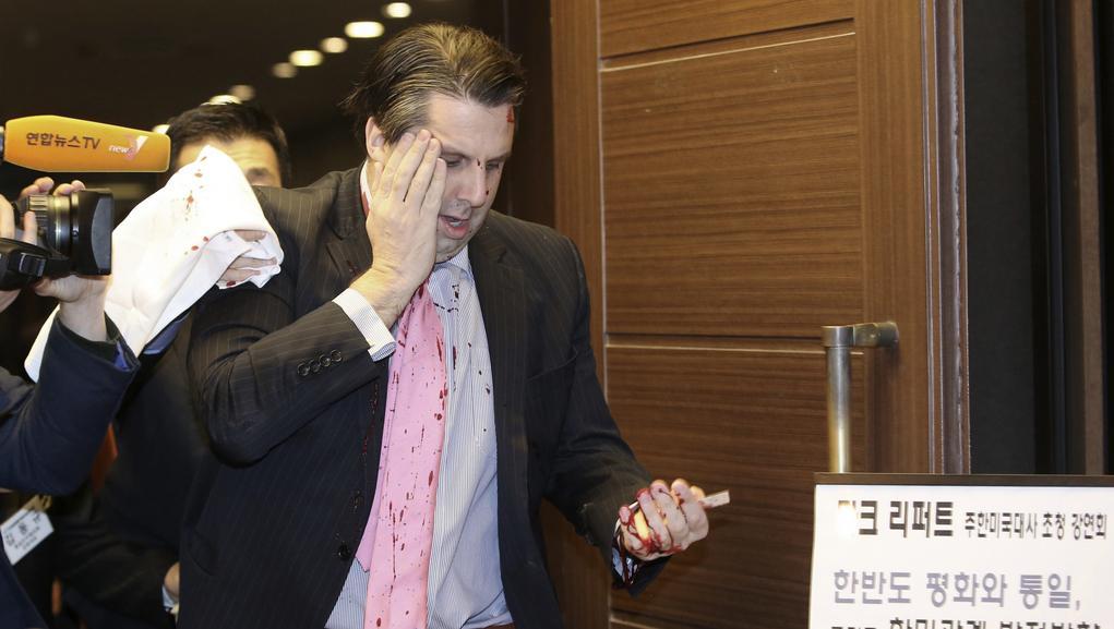 Zraněný velvyslanec Mark Lippert