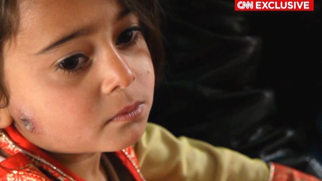 Dcera Afghánky Gulnaz