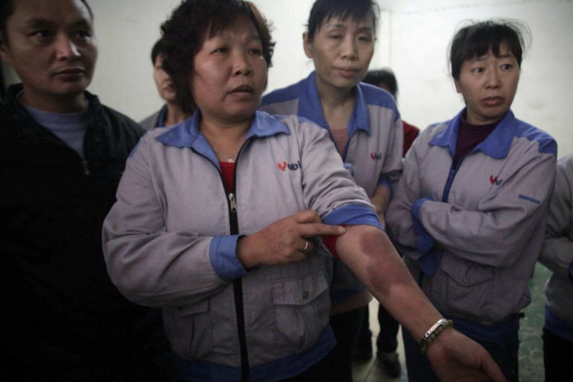 Čínské dělnice ukazují zranění po policejním zásahu