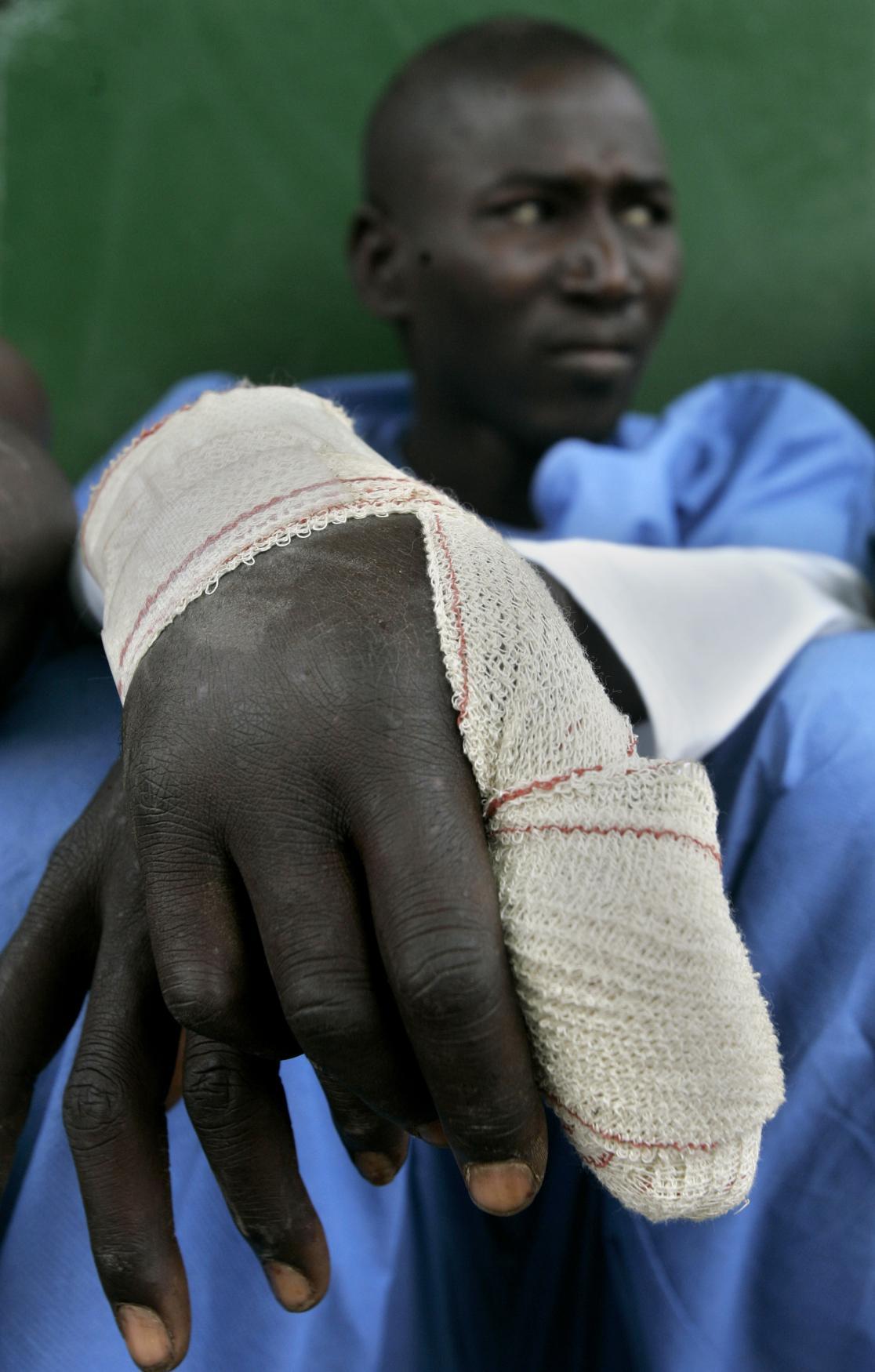 Zraněný běženec odpočívající v Mellile