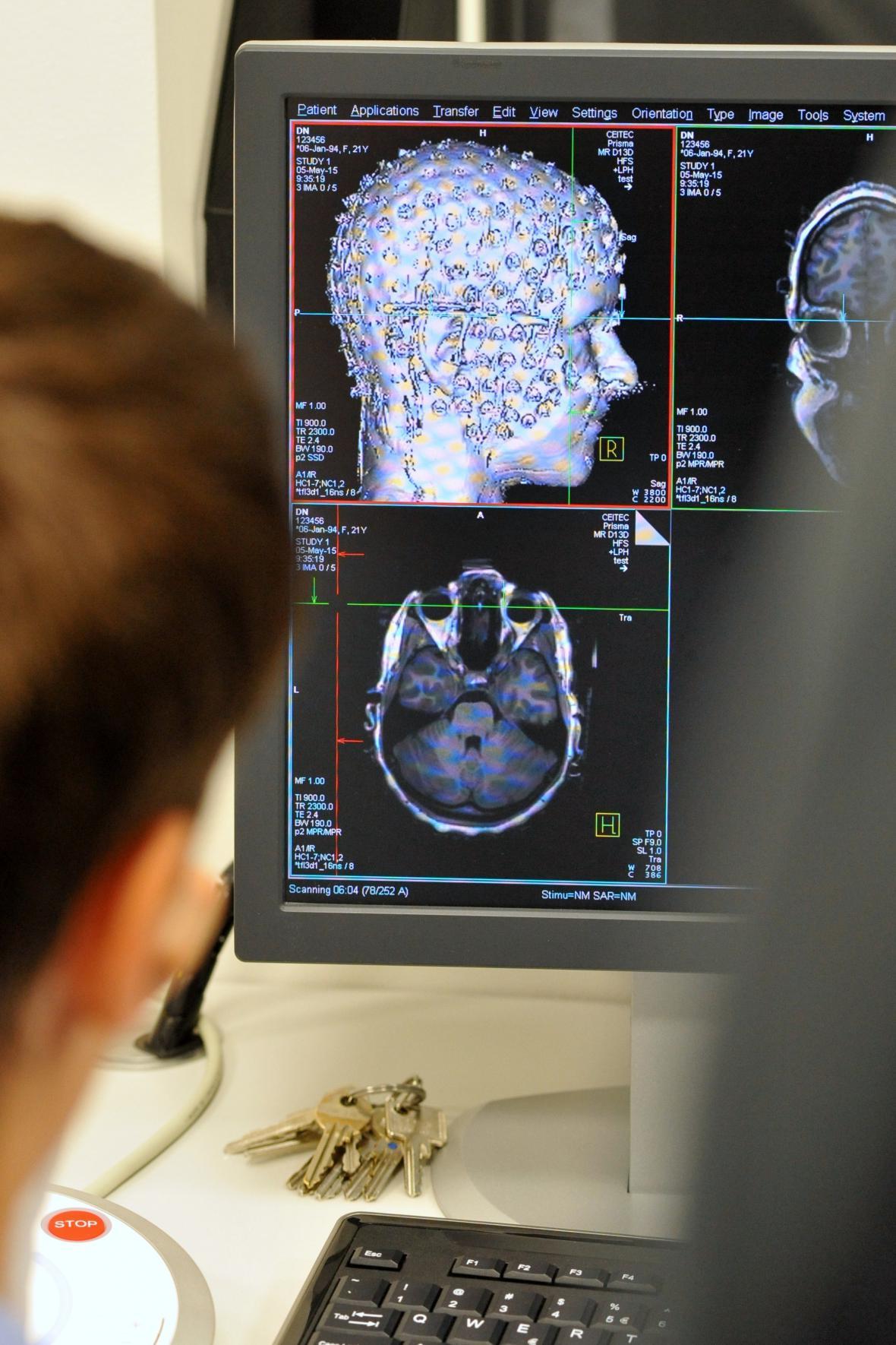 Nové tomogfrafy v brněnském Ceitecu Masarykovy univerzity