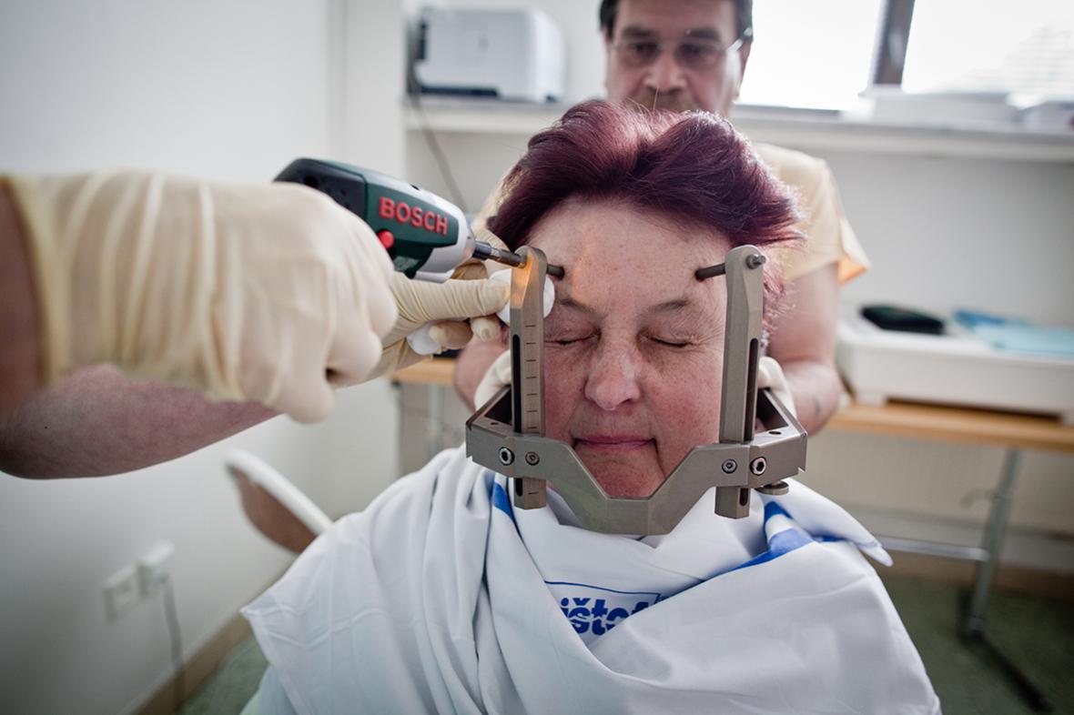 Milan Jaroš / Příprava na operaci Leksellovým gama nožem, 2010