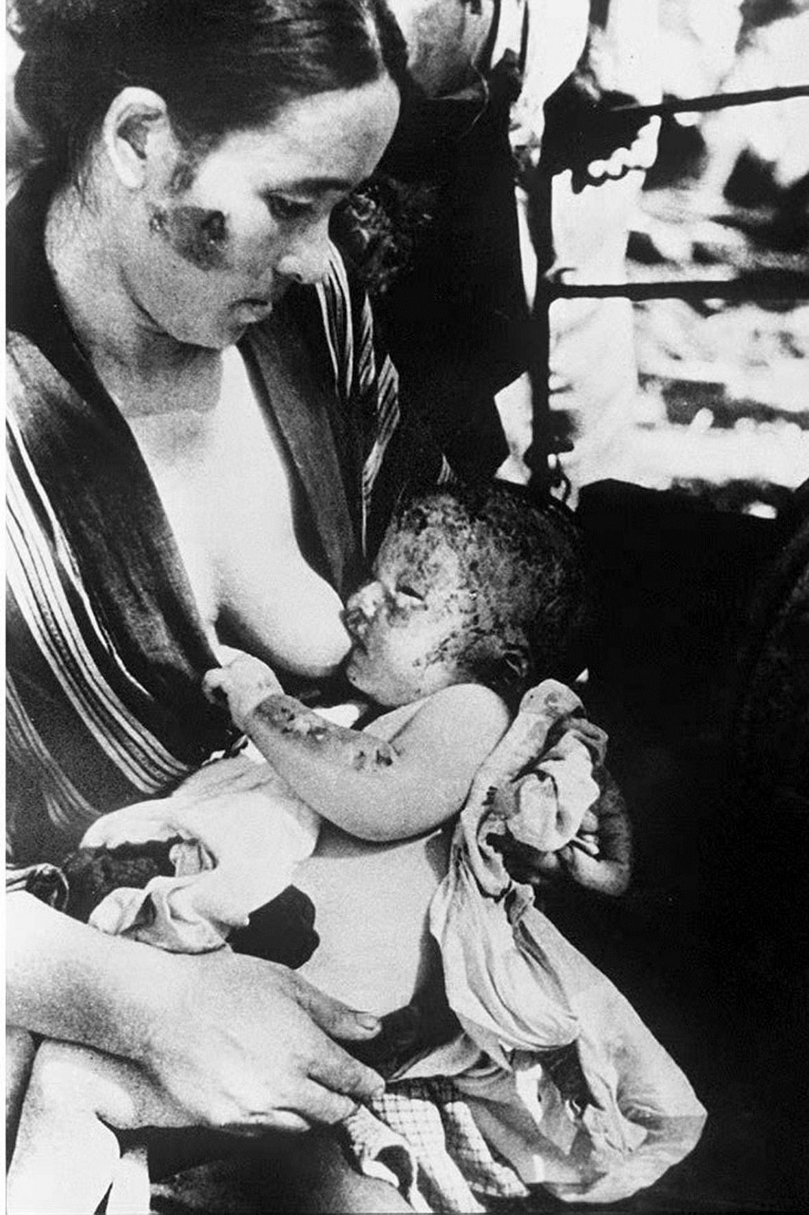 Matka s dítětem po výbuchu