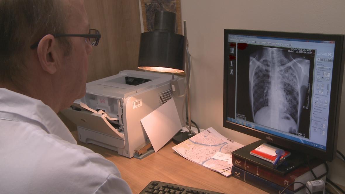Tuberkulinové testy onemocnění neprokázaly, část dětí musí ještě na rentgen