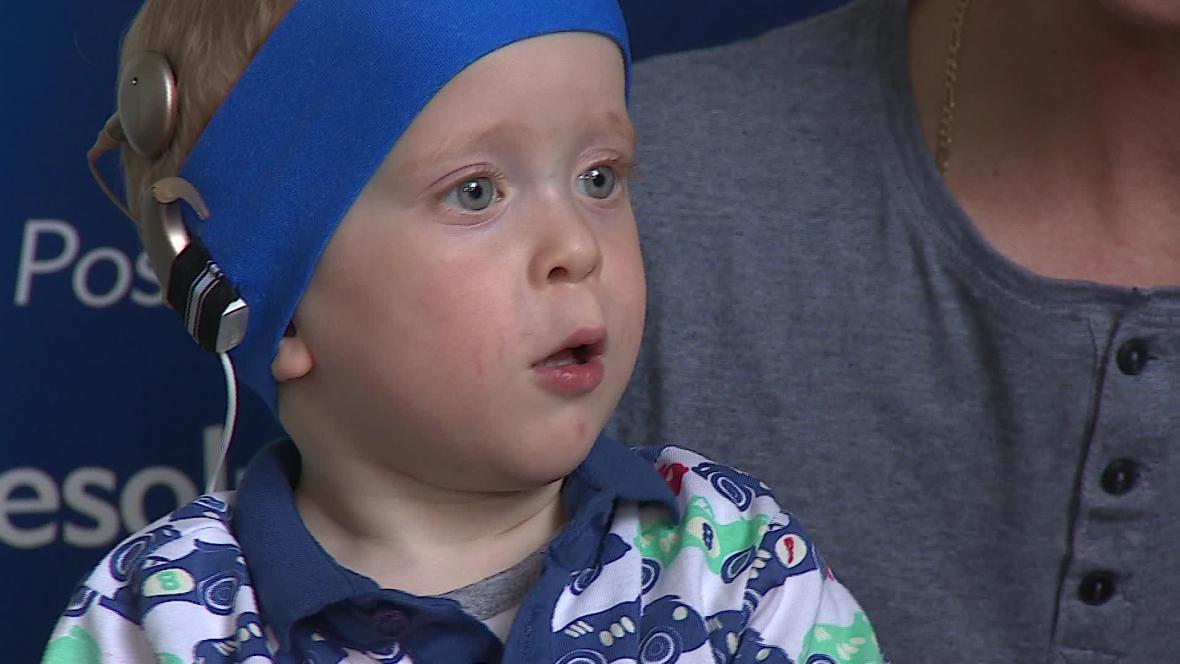 Malý Šimon se s novým implantátem učí teprve slyšet