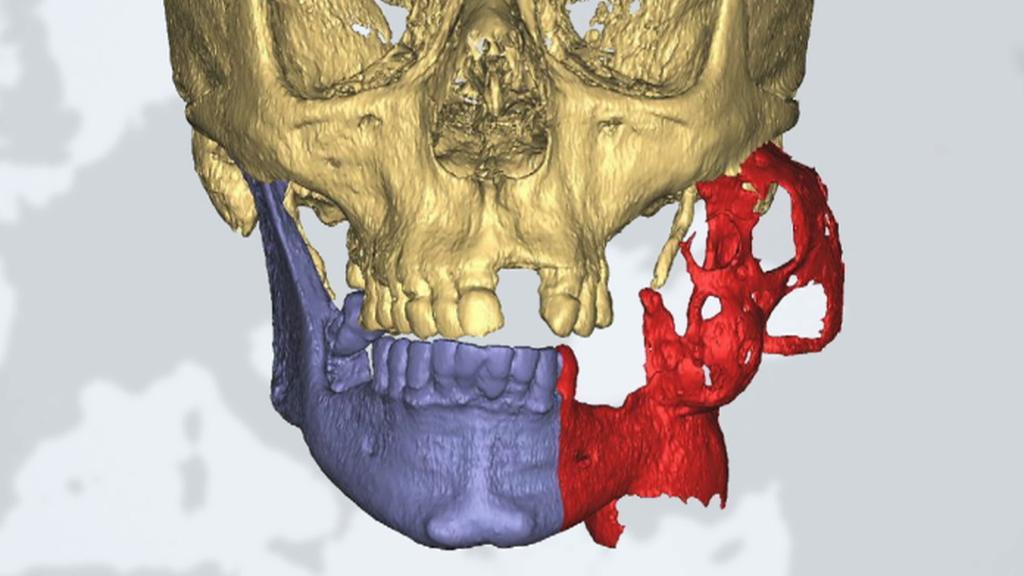 Rekonstrukce čelisti napadené rakovinou pomocí 3D technologie – nádor je označený červeně