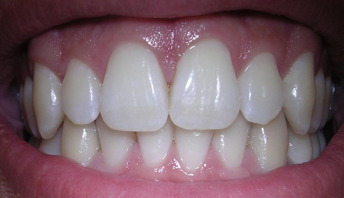 Zuby, ilustrační foto
