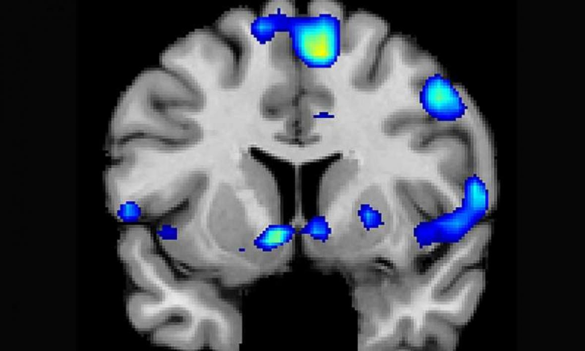 Náboženské vjemy v mozku