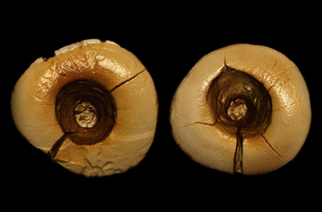 Zubařský krok starý tisíce let