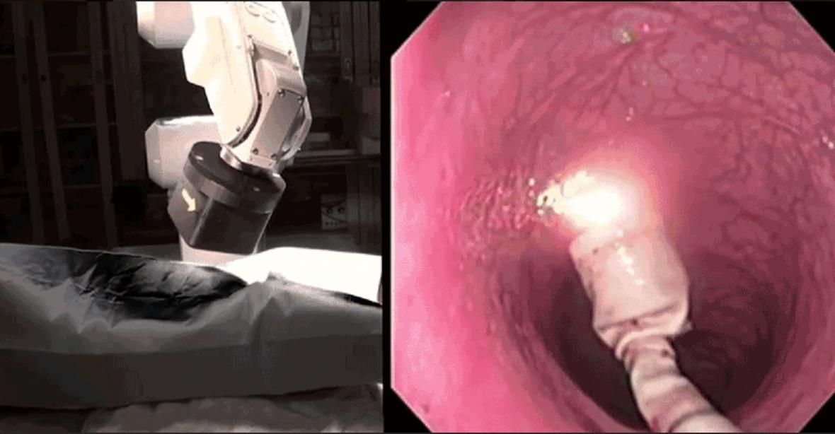 Robotická kolonoskopie