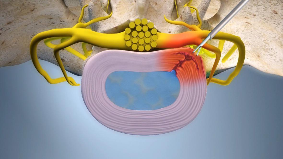 Endoskopické ošetření vyhřezlé meziobratlové ploténky