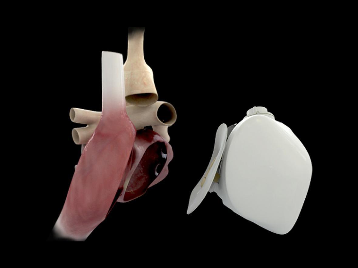 Umělé srdce CARMAT