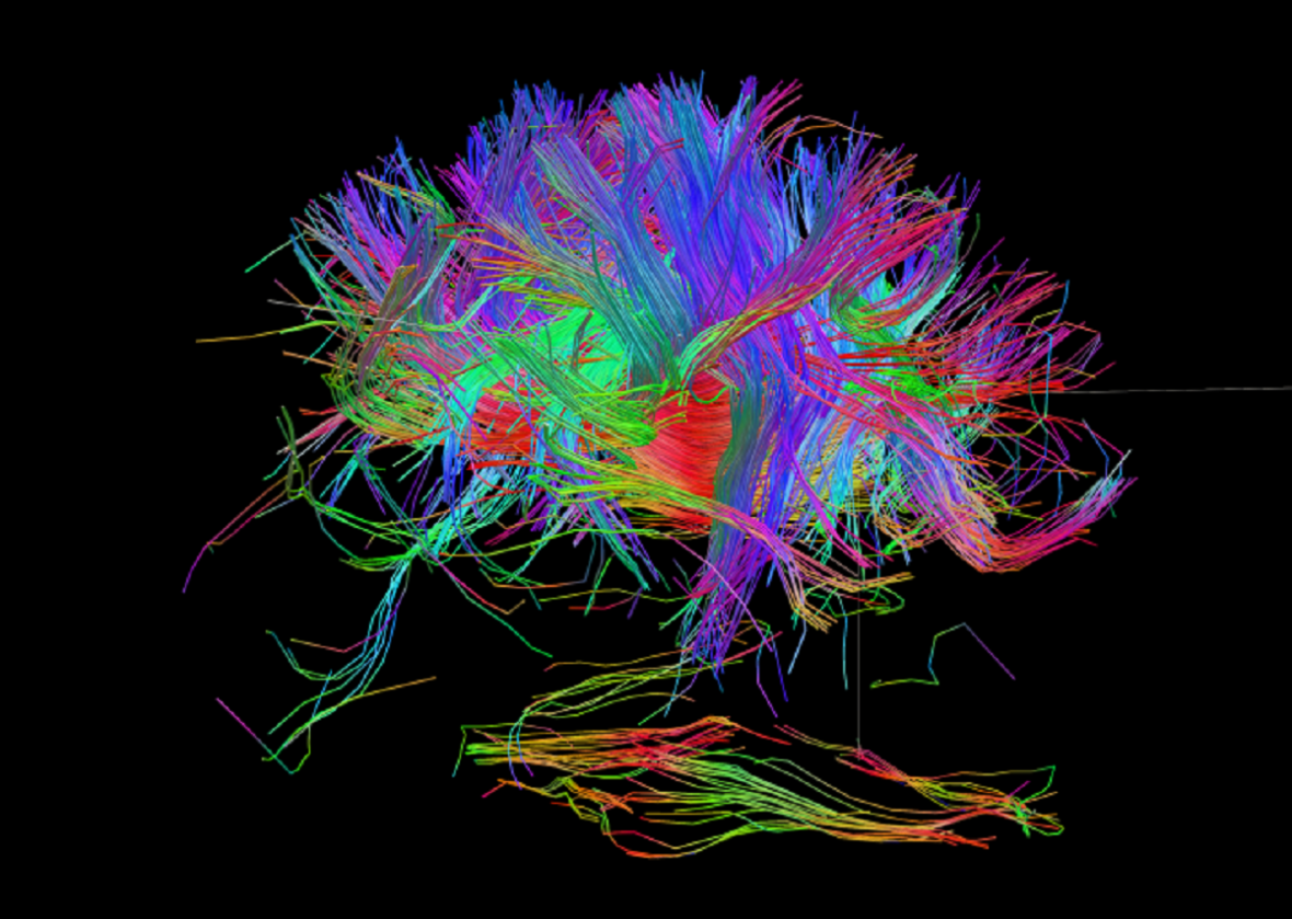 Skeny lidského mozku
