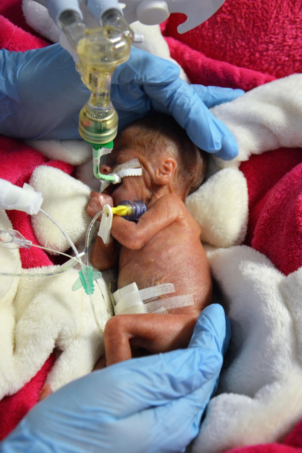 Holčička narozená s hmotností 322 gramů
