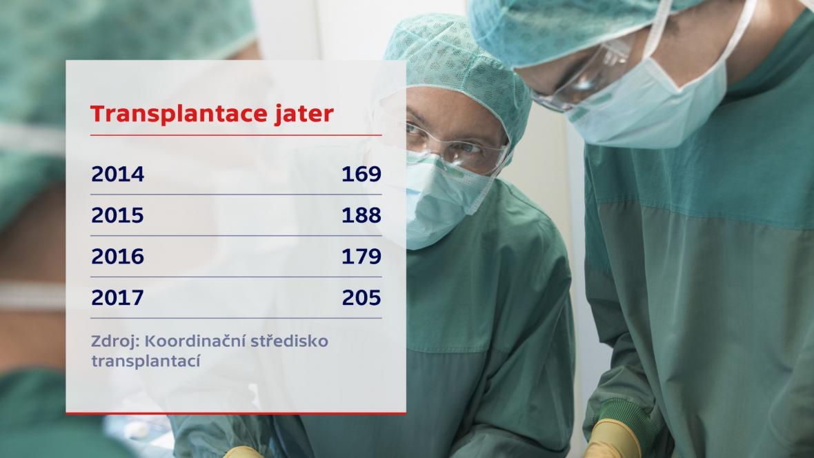 Transplantace v ČR