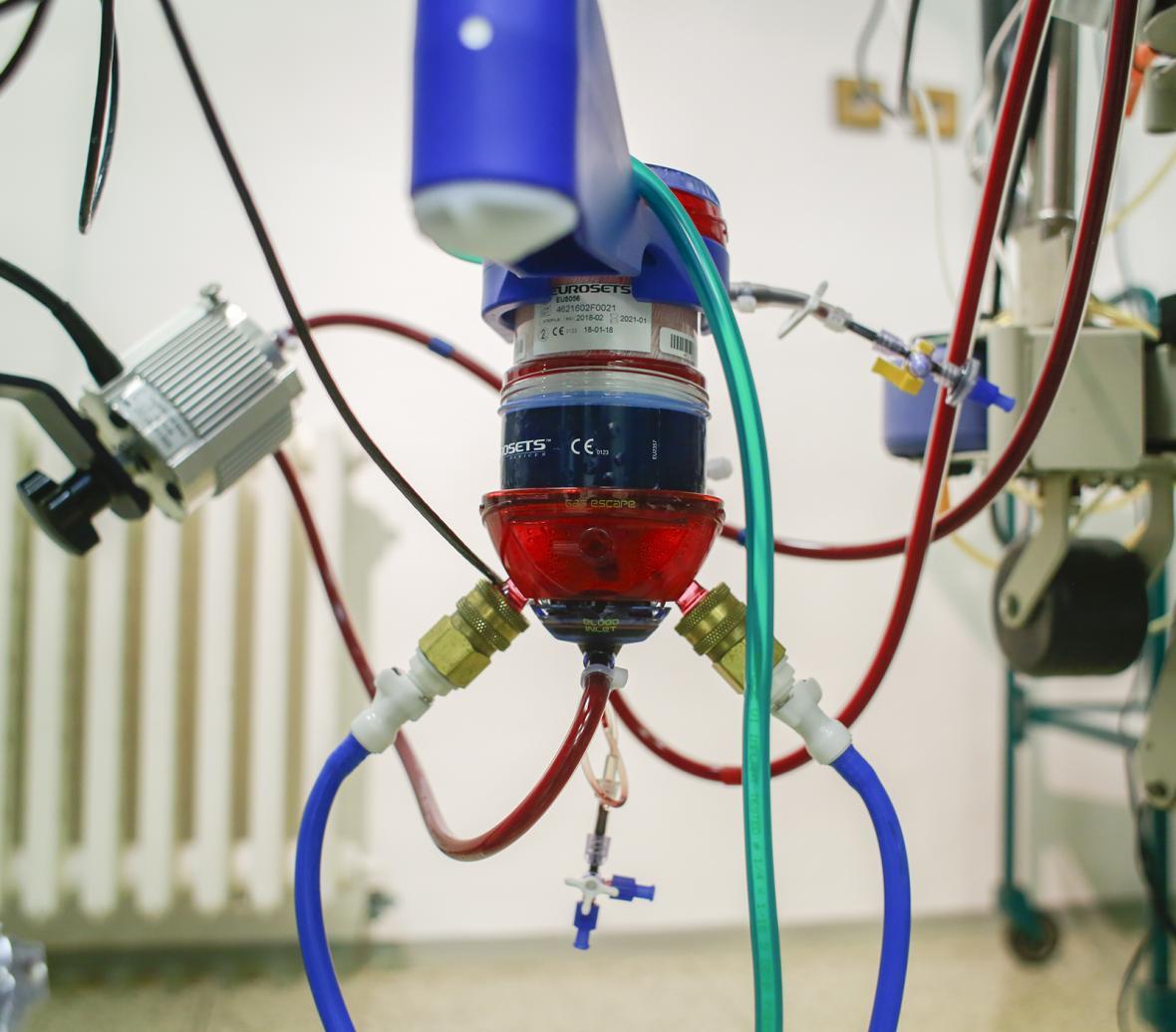 Mimotělní pumpa