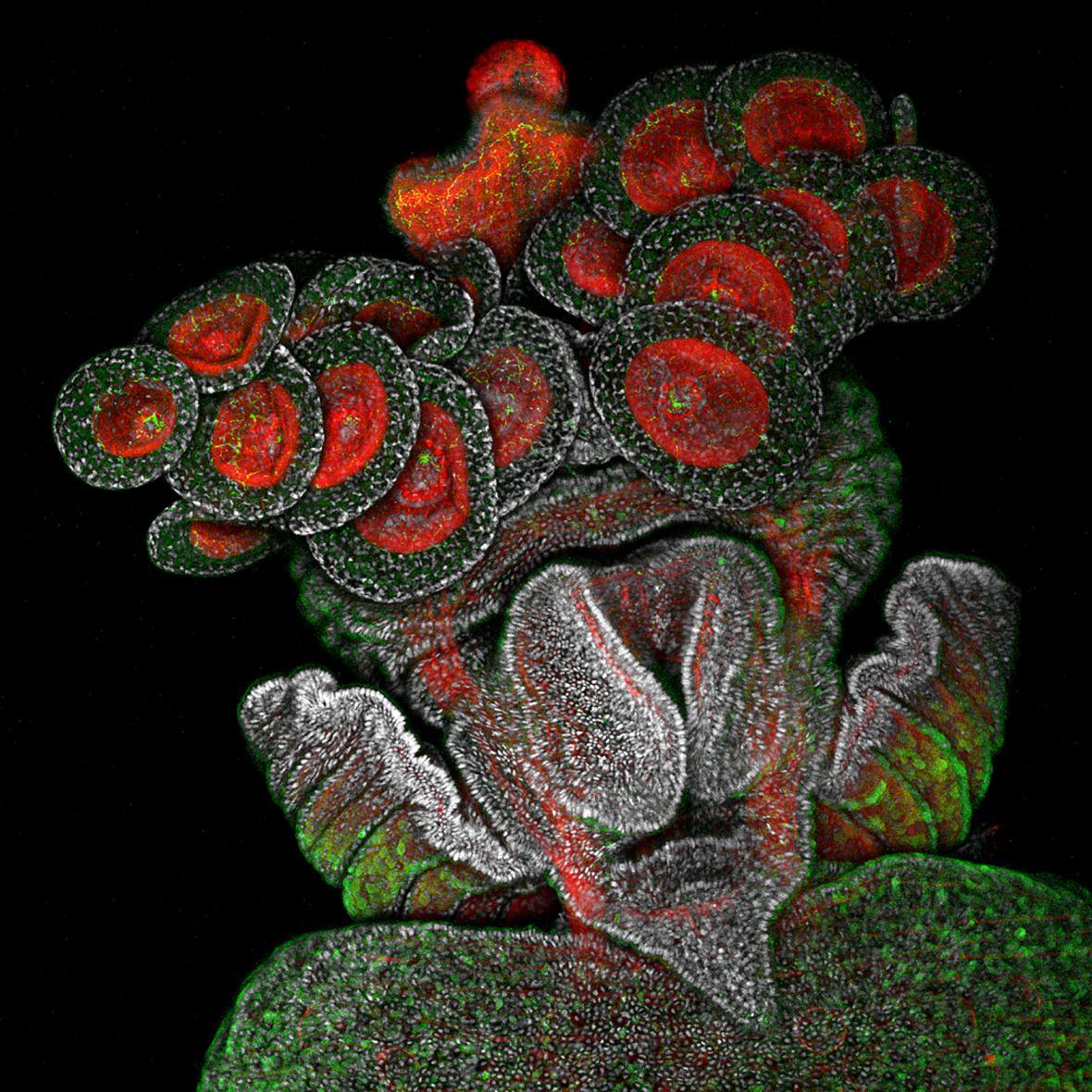 Vítěz fotosoutěže Nikon Small World: Oko brouka Metapocyrtus subquadrulifer (Spojené Arabské Emiráty)