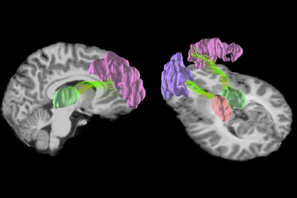 Oblasti mozku nejvíc poškozené nárazy