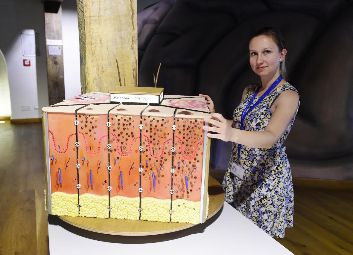 Model kůže s ukázkami kožních chorob