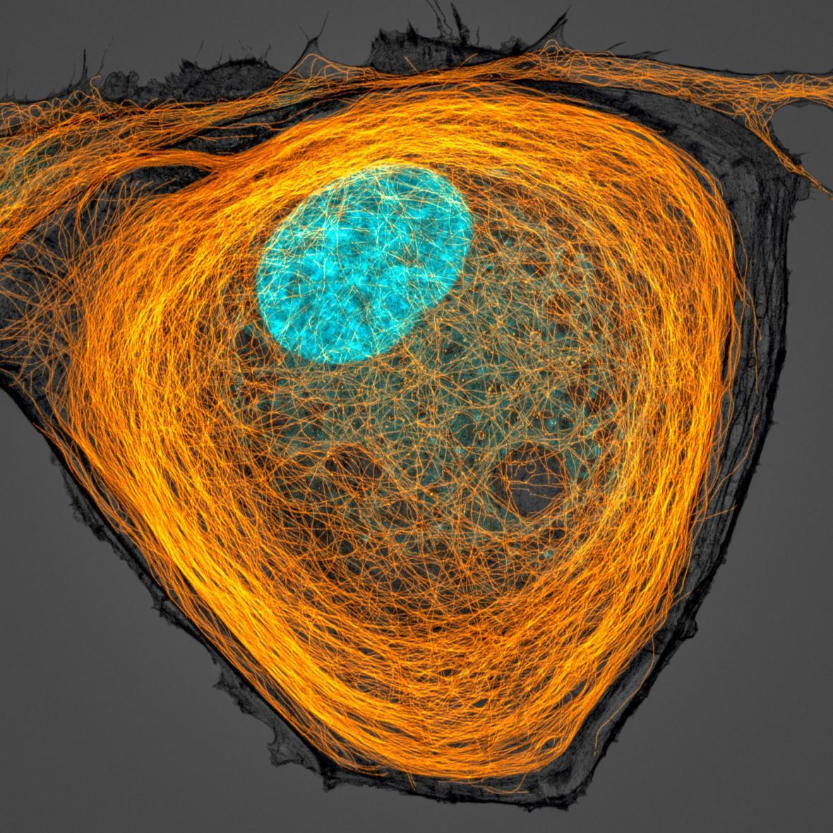 7. místo: Jason Kirk, mikrobutuly v buňce, jádro je azurově