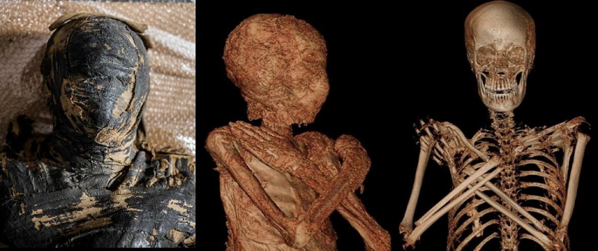 První těhotná mumie