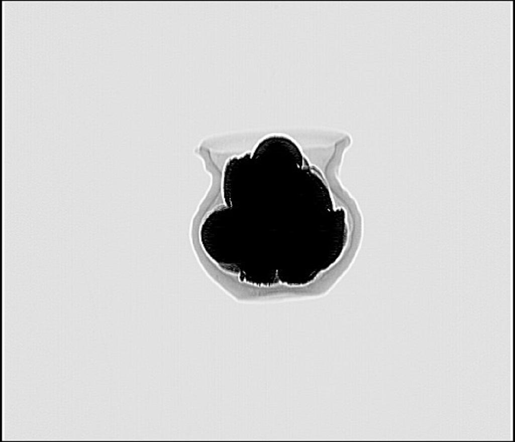Snímek pořízený metodou CT