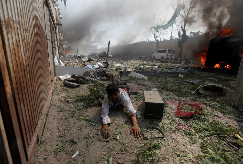 Zraněný po útoku v Kábulu