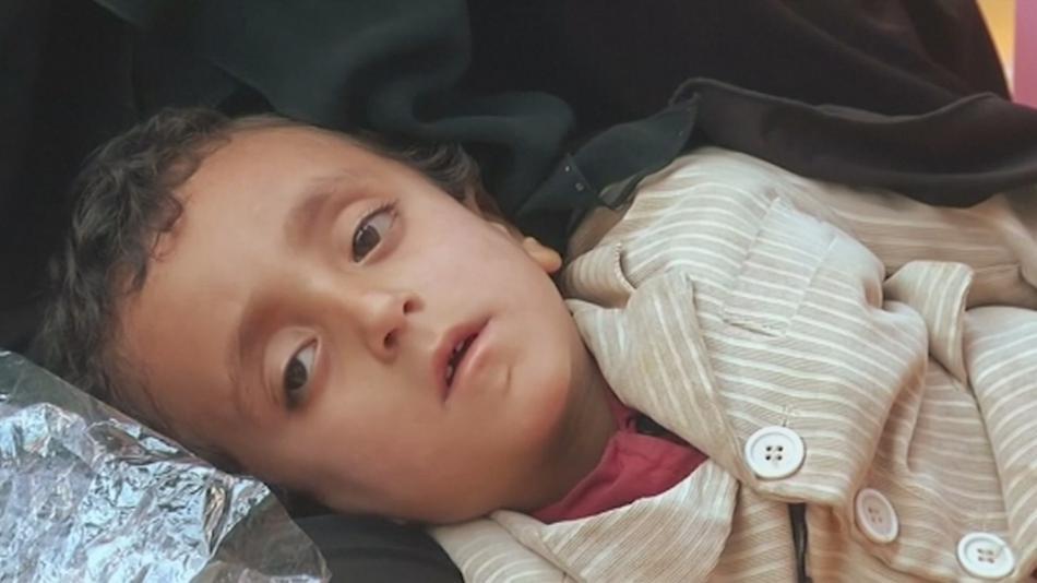 Dítě trpící cholerou