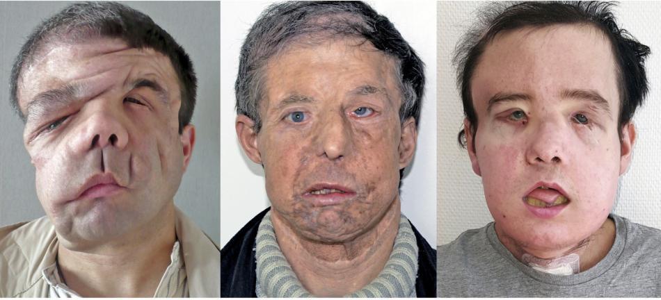 Hamon před a po dvou transplantacích oblčeje
