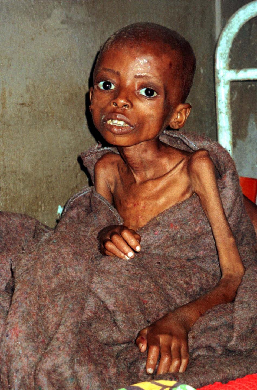 Kvůli válce vypukl v Kongu hladomor, který zasáhl stovky tisíc lidí